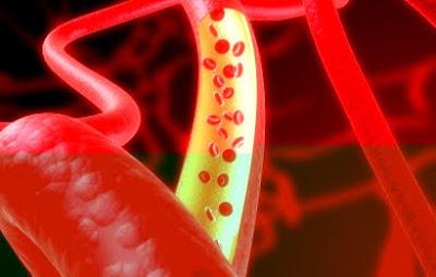 Klasifikasi Kadar Gula Darah Pada Manusia
