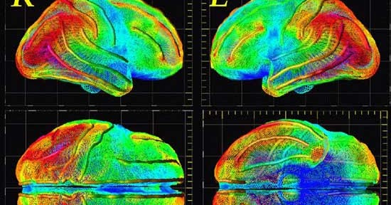 Four Types of Depression Revealed By 1,100 Brain Scans ...