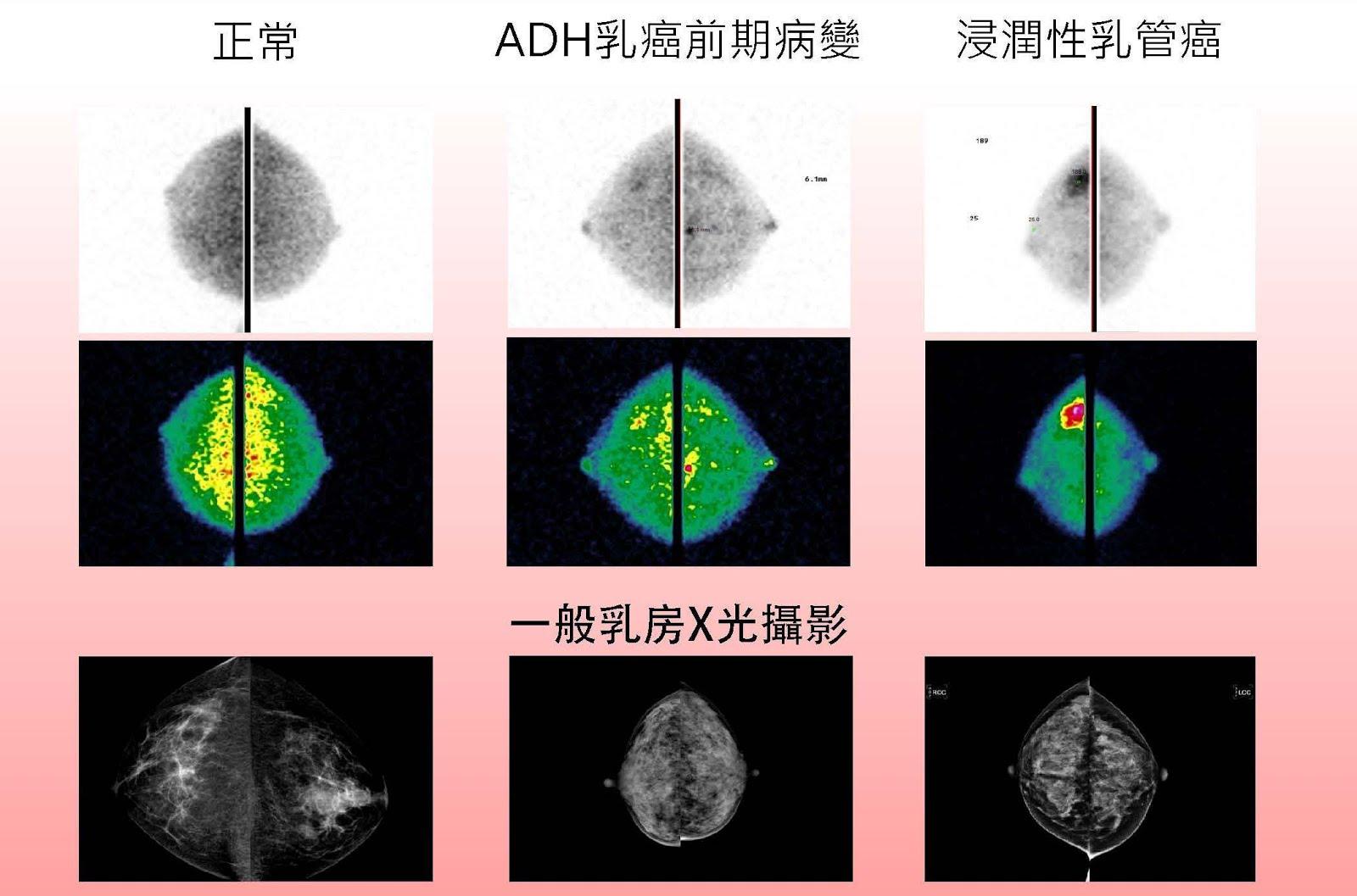 次世代乳癌檢測利器(乳房分子影像MBI)