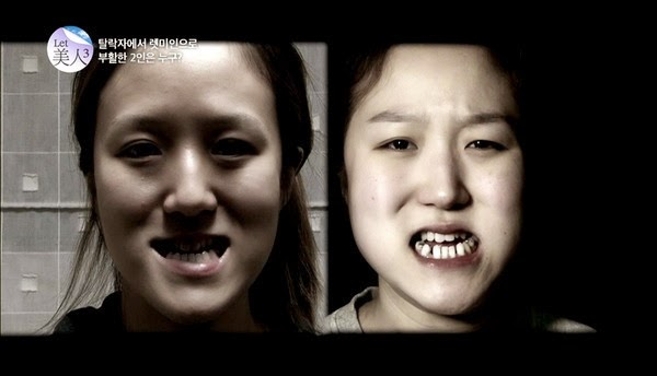 SERIUS LAIN Hasil Pembedahan Plastik Ke Atas Pasangan Kembar Di Korea