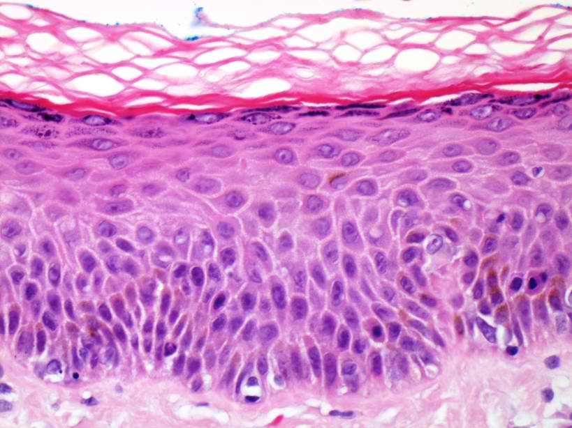 basal cells on nose #9