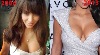 Kim Kardashian nose surgery change 2006 2013 funny