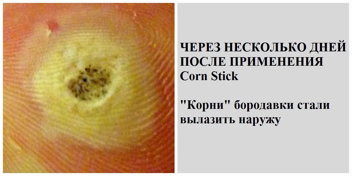 Как обрабатывать папилломы после прижигания азотом