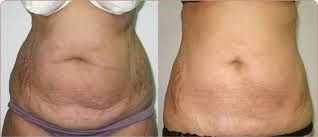 loose skin after weight loss