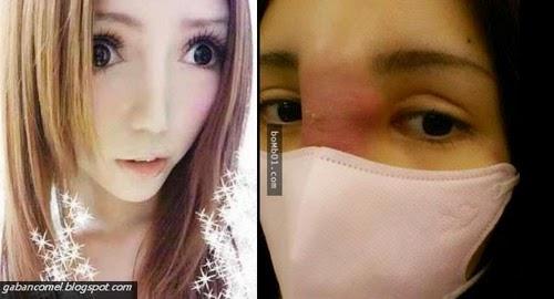 Terlalu Kerap Melakukan Pembedahan Plastik Wajah Gadis Ini Hampir Membusuk