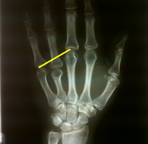 metacarpal heads this is called my modified positive metacarpal sign