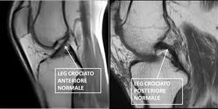 Riabilitazione legamento crociato anteriore semitendinoso