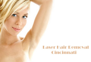 Laser Hair Removal Cincinnati