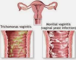 Bahaya Penyakit Radang Vagina