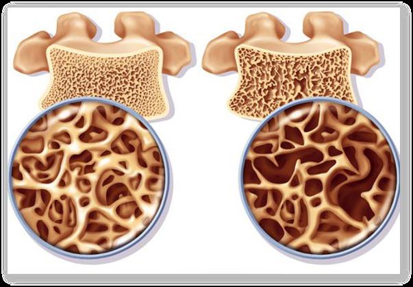 Osteoporoza de postmenopauza