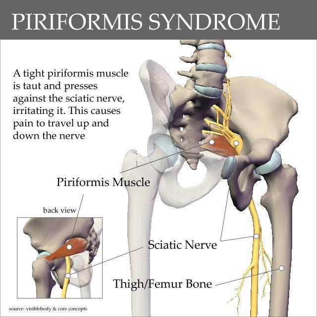 Infinite Lila: Sciatica vs. Piriformis Syndrome