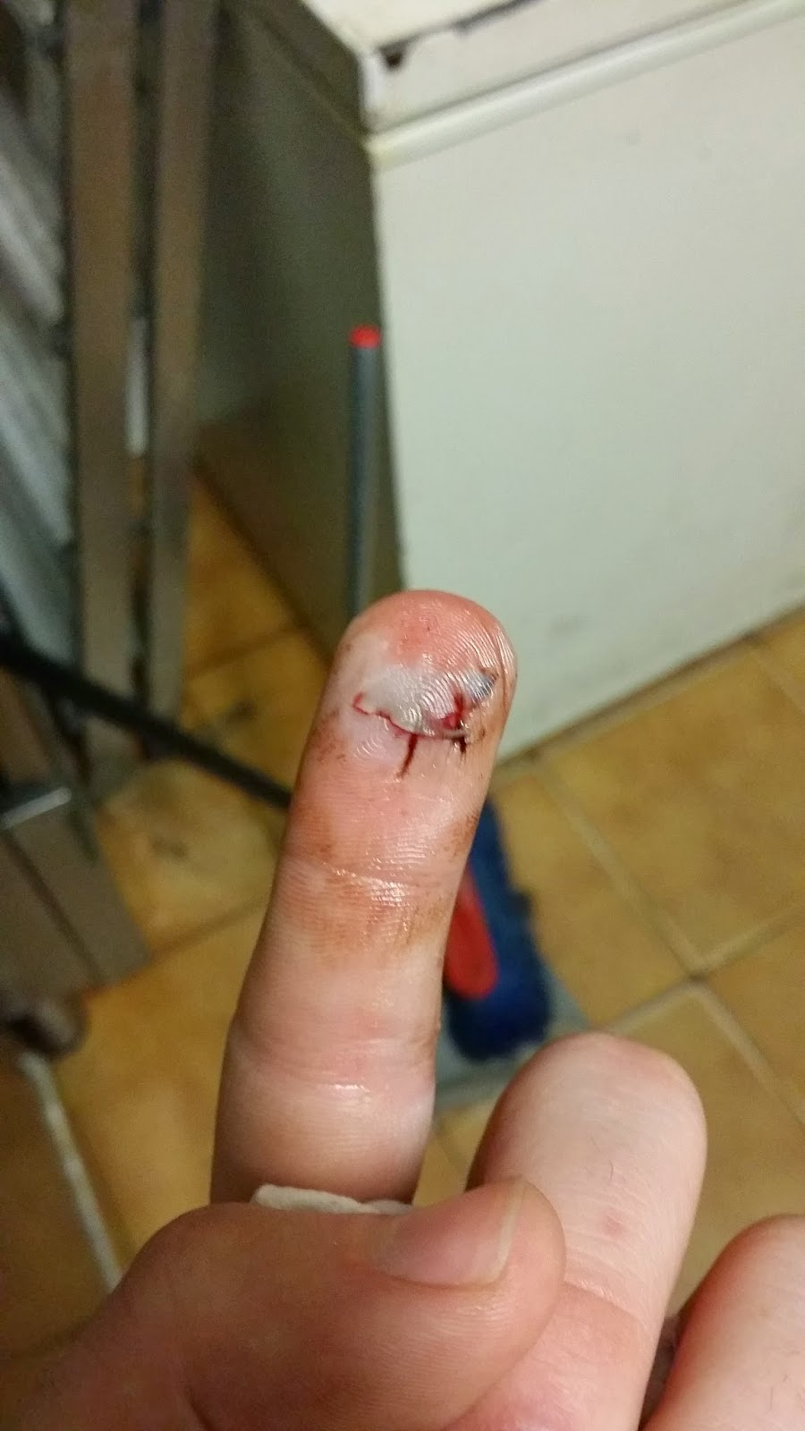 cicatriz dedo
