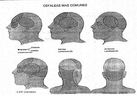 cefalea e síndrome convulsivo
