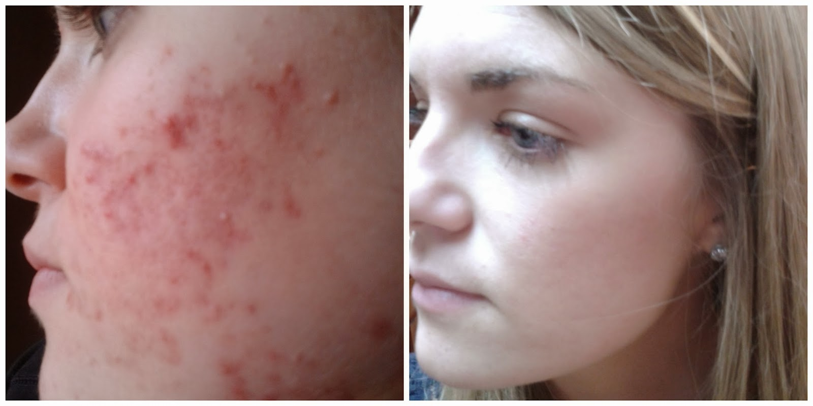 Accutane Good Results