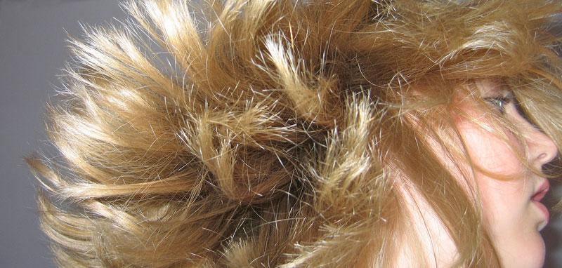 Caen los cabellos al niño 1.5 años