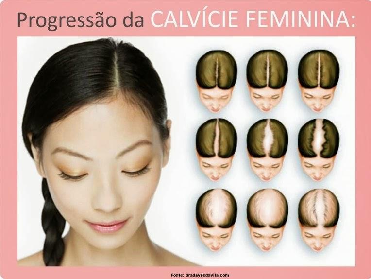 Progressão da calvície feminina