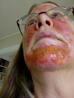 Murrmurrs losing face layer two for Antibiotics for infected tattoo