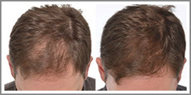 Safe and effective FDA-approved laser hair rejuvenation treatment
