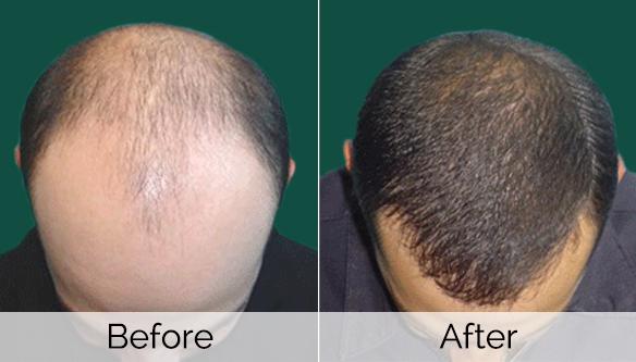 Quanti normale i capelli quando la pettinatura abbandona