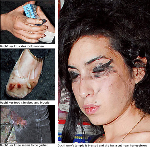 amy winehouse death