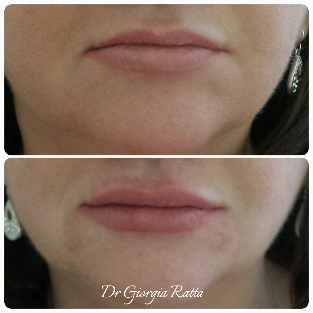 Professional Lip Filler By Dr Giorgia Ratta