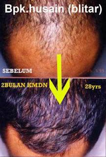 Hasil Obat Penumbuh Rambut Kaminomoto Mengatasi Kebotakan