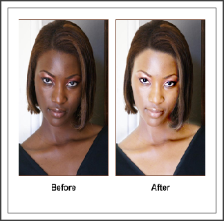 Glutathione Injection Before and After http://polocosmetics4u.blogspot.com/2013_01_01_archive.html#!