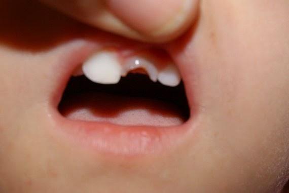 troubles dentaires chez les enfants pouss 233 e dentaire