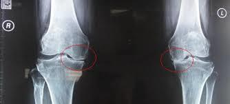 lutut, sendi, sendi lutut, arthritis, glucosamine, ajht