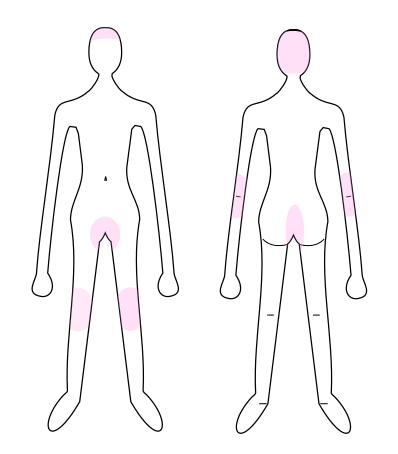 Psoriasis en los genitales