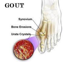 gejala asam urat pada kaki