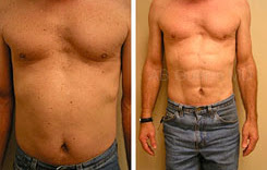 male liposuction with abdominal etching before and after results performed at affordable prices by best cosmetic plastic surgeon india kolkata