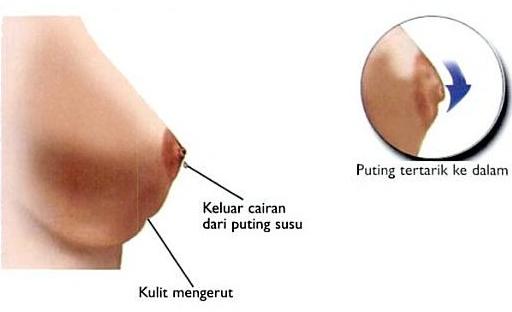 Hasil gambar untuk kanker payudara stadium 1