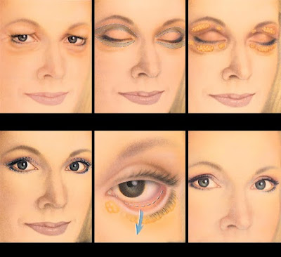eye lid surgery before and after photos