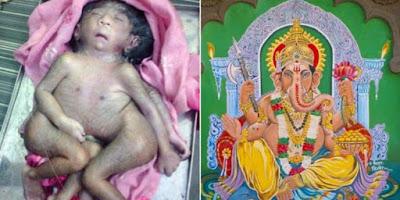 Anak Lahir Tak Sempurna Yang Dianggap Titisan Dewa