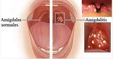 Cómo eliminar la amigdalitis y el dolor de garganta en 5 horas!