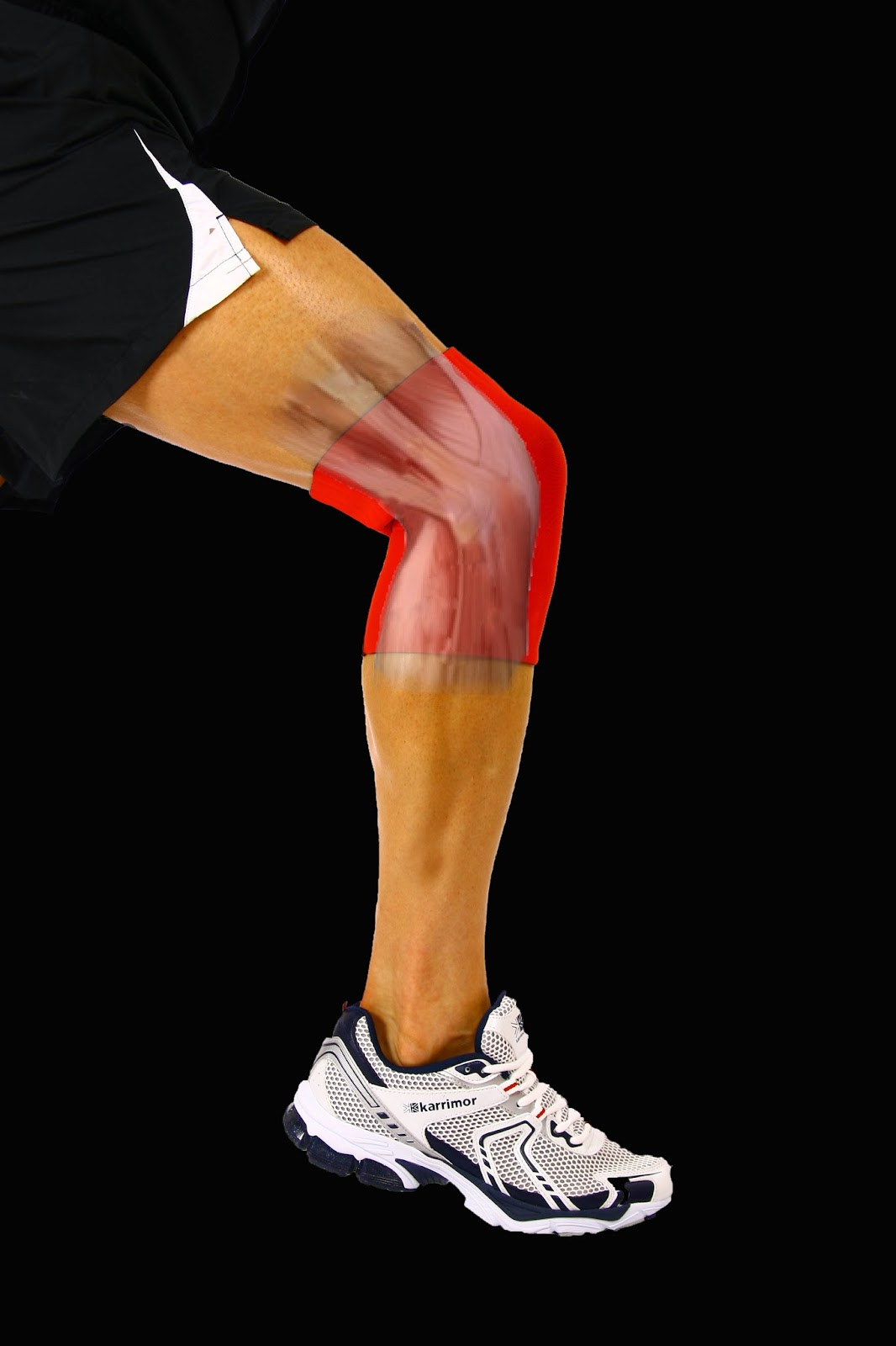 Knee Pain - Running with Knee Pain