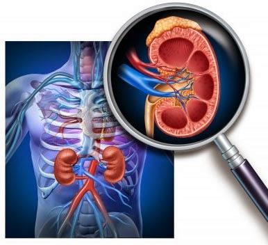 Bệnh thấp khớp có nguy cơ mắc bệnh thận cao
