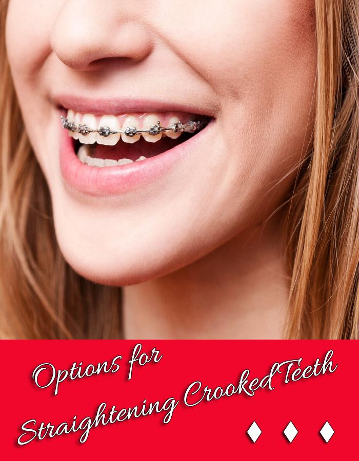 Options for Straightening Crooked Teeth
