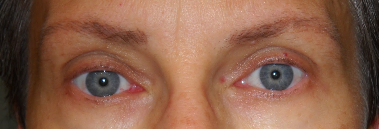 The Cancer Classroom Eyebrow Tattooing And Eyelash Growing