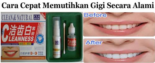 Obat Pemutih Gigi Super Cepat Cleanness Tooth Jual Obat Perontok