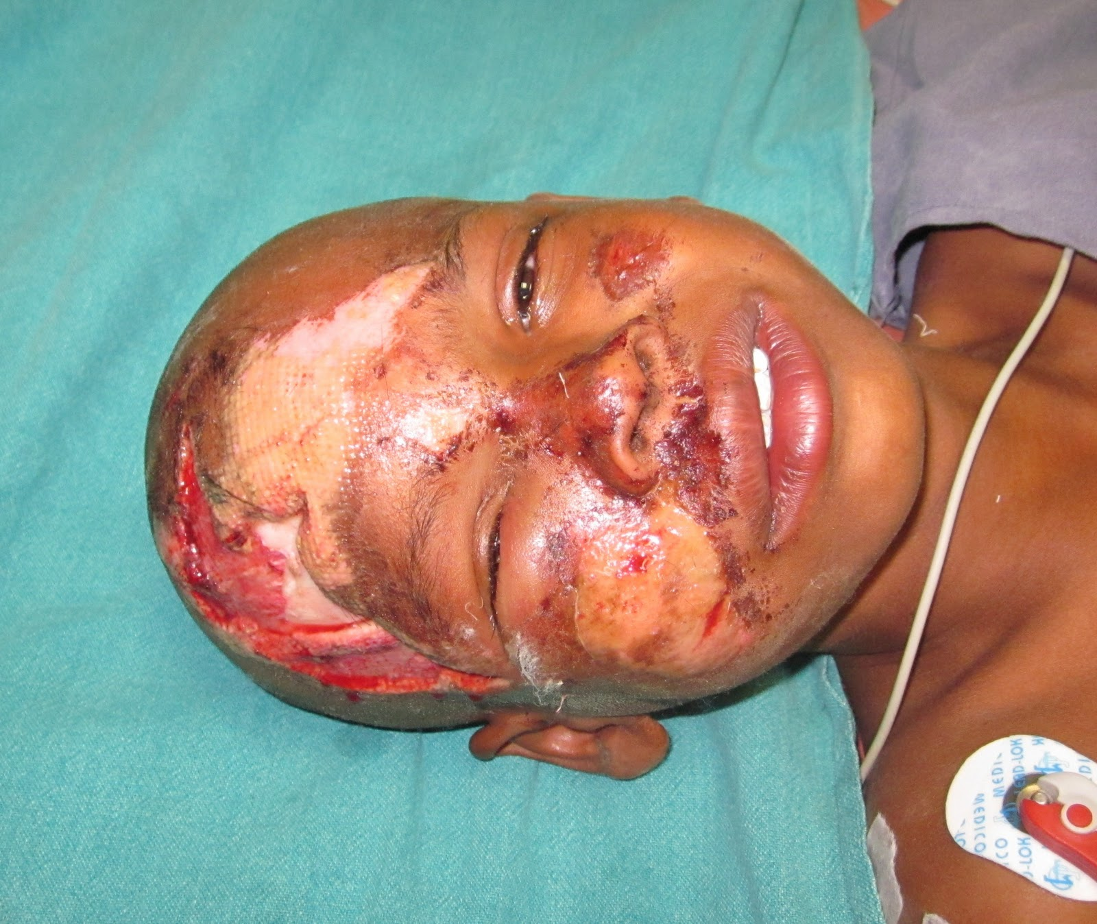 Definition compulsion facial fracture causing loss of smell provide support
