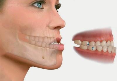 maxilar inferior