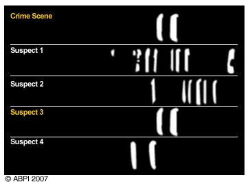 Unseen rare collection dna forensicskidsdna fragmentation dna fingerprinting diagram unseen rare diagram ccuart Gallery