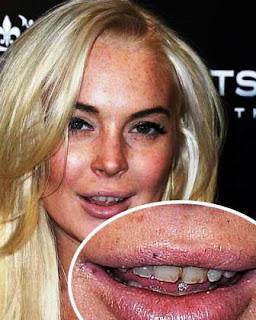 Lindsay Lohan Teeth