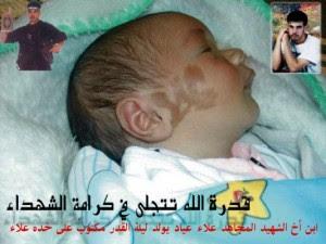 طفل يولد واسمه مكتوب على خده - سبحان الله