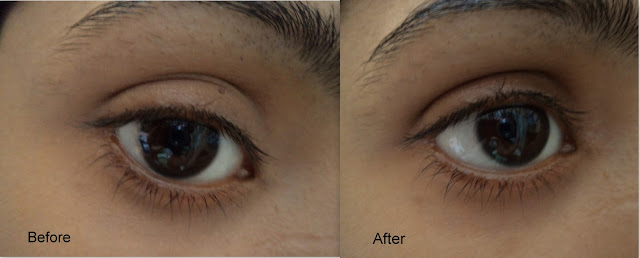 before after pictures dark circles concealer cover