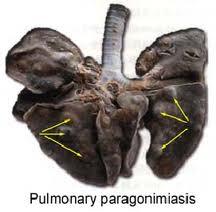 se ven bultos en los pulmones, que son los trematodos