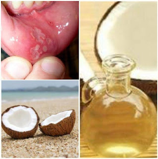 Coconut Oil - A Natural Mouth Ulcer Cure