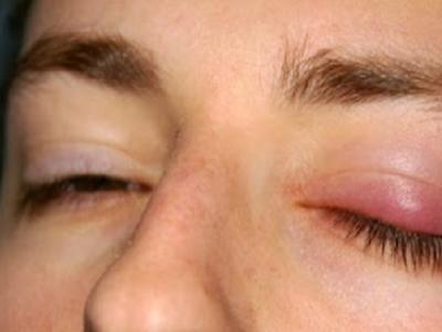 Cara Menghilangkan Mata Bintitan